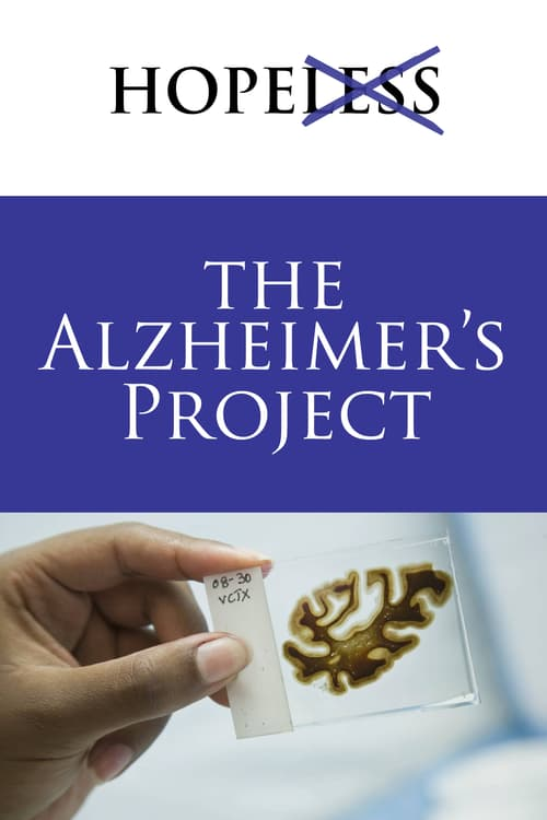 Projekt Alzheimer online